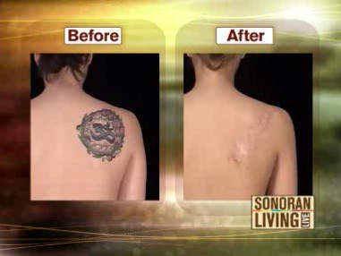 Having second thoughts about that tattoo? Here's how to get it removed