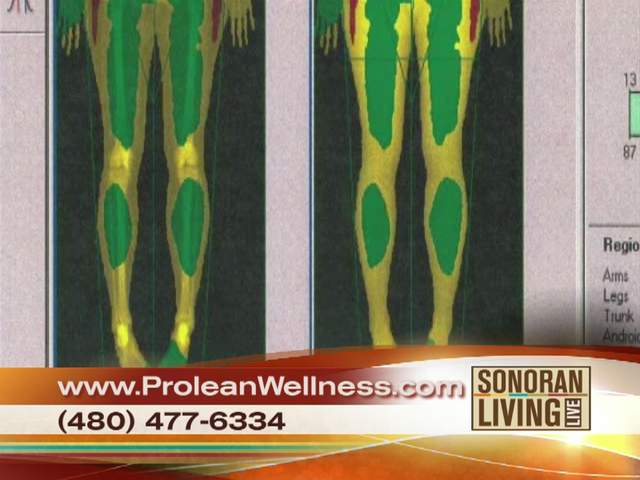 Prolean Wellness offers wellness program that may be for you