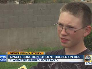 Valley teen burned on bus?