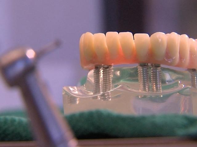 ABC15 exposes 'hidden' dentist discipline in AZ