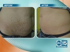 Get younger looking skin at LaserMed Solutions