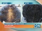 Laser treatments can help regrow your hair