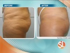 Non-surgical body contouring