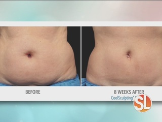Coolsculpting at VeinMed Solutions