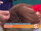Acupuncture for anxiety & depression