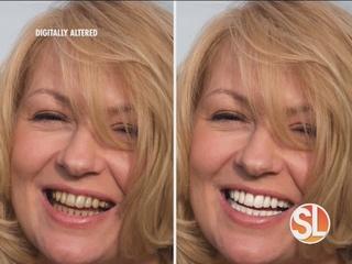 Summertime teeth whitening