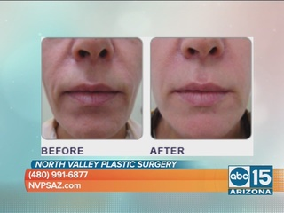 Non-surgical Lunch Time Facial Lift