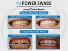 Whiten your smile this summer