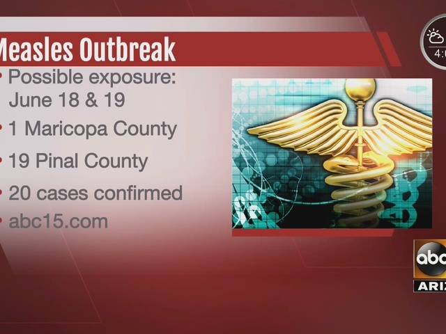 New case of measles confirmed in Arizona