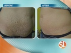 RF technology can help tighten skin