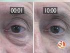 Reduce baggy eyes