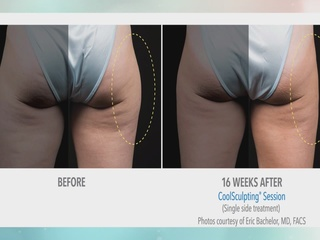 Inch loss without surgery