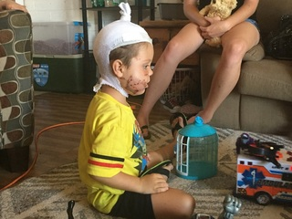 Glendale 4-year-old recovering after dog attack
