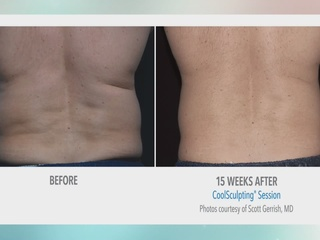Inch loss by freezing fat