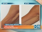 New treatment for skin tightening and cellulite