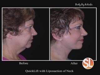 Combining cosmetic procedures