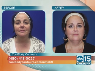 A facelift with no down time