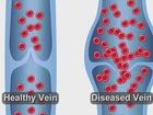 FDA approved procedure Venaseal
