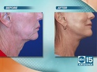 Lasting Facelift and skin treatments