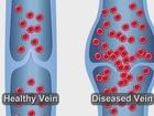 FDA-approved procedure VenaSeal