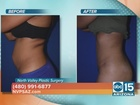 Tummy Tuck without drains