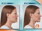 Non-surgical injectables