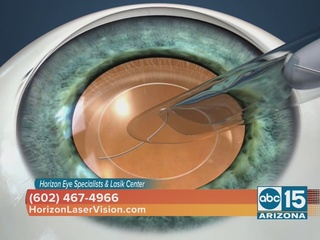 New vision options for cataract patients