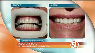 Cosmetic dentistry procedures for under $100