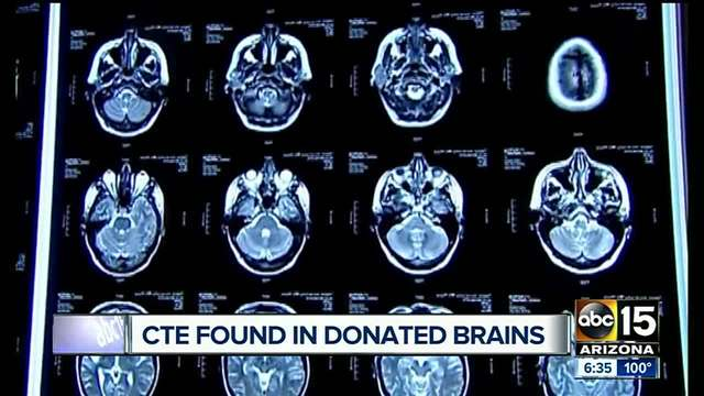 STUDY- CTE found in 99- of deceased NFL players- brains donated to…