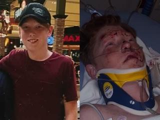 PD: Driver hits teen on bike, flees scene
