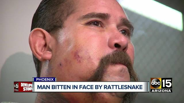 Arizona man bitten in face by rattlesnake after trying to catch it