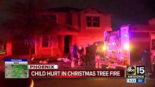 FD: 11-year-old boy burned in Phoenix house fire