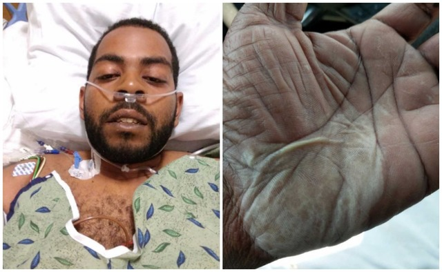 man says he contracted flesh eating bacteria after visiting valley