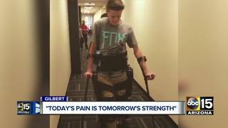 Gilbert teen overcomes accident, inspires others