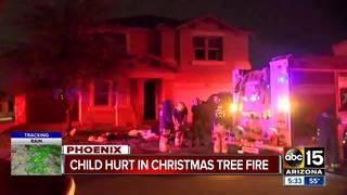 FD: 11-year-old boy burned in Phoenix house fire