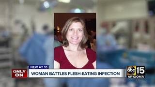 Valley woman suffering from flesh-eating disease