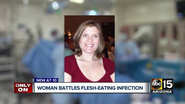 Valley woman diagnosed w/ flesh-eating disease