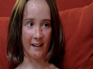 Valley girl with rare skin condition progressing