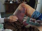 Payson grandmother hospitalized after elk attack