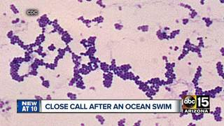 PHX man survives infection from San Diego beach