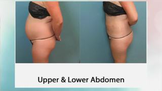 Get amazing results with high definition lipo!